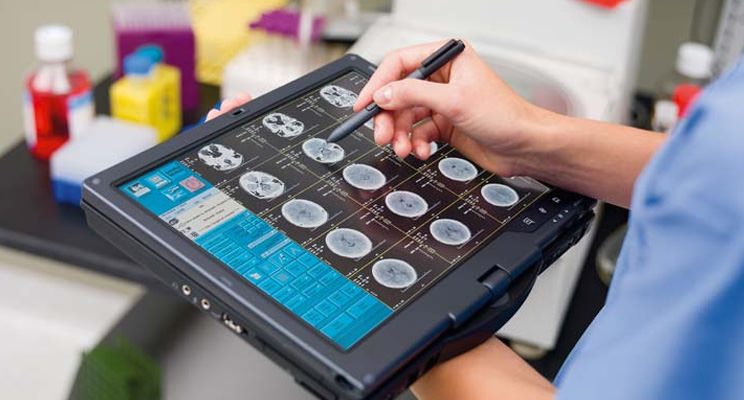 An image of a medical service tablet used for viewing brain scans